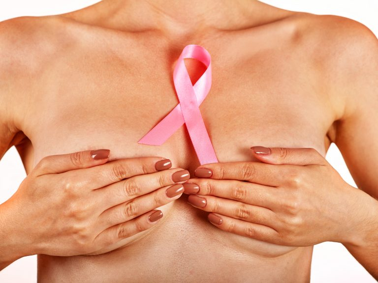 Borstkanker preventie